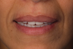 Fig 9. Provisionals showing incisal exposure with the lips at rest.