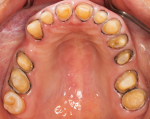 Fig 10. Dentition when final impressions taken.