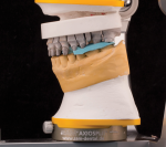 Fig 13. Maxillary prepared arch mounted on mandibular provisional model.
