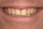 Fig 3. Preoperative full smile showing the amount of tooth and gingival display