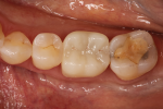 Fig 4. Occlusal view of an esthetic crown fabricated from a 550-MPa zirconia material.