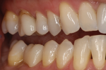 Fig 5. Buccal view of the same esthetic zirconia crown.