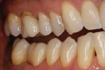 Fig 7. Buccal view of the same esthetic IPS e.max ZirCAD Multi restoration.