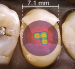 "Fig 2 through Fig 4. Overlay of a beam profile on a MOD cavity preparation for a premolar and light diameters sized to demonstrate clinical conditions (hot spots: red, orange, yellow; cold spots: blue, violet). Fig 2: Light A premolar MOD preparation – The irradiance values over the proximal boxes are inadequate and the light tip does not cover the entire occlusal surface. Fig 3: Light B premolar MOD preparation – The irradiance values over the proximal boxes are inadequate and the light tip does not cover the entire occlusal surface. Fig 4: Light C premolar MOD preparation – Note the uniform irradiance values with a ""top hat"" appearance, and coverage over the proximal boxes is very acceptable covering the entire occlusal surface."