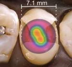 Fig 2 through Fig 4. Overlay of a beam profile on a MOD cavity preparation for a premolar and light diameters sized to demonstrate clinical conditions (hot spots: red, orange, yellow; cold spots: blue, violet). Fig 2: Light A premolar MOD preparation – The irradiance values over the proximal boxes are inadequate and the light tip does not cover the entire occlusal surface. Fig 3: Light B premolar MOD preparation – The irradiance values over the proximal boxes