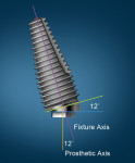 The Co-Axis implant illustrating the off-axis orientation of the platform in relation to the implant's long axis.