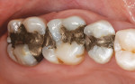 Figure 1  Preoperative condition of the maxillary left posterior teeth.
