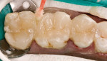 Figure 9: All porcelain restorations were placed and excess cement was cleaned with microbrushes.