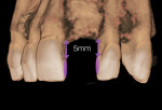 Fig 2. Example, frontal view of anterior maxilla showing measurement from crestal bone to gingival extent of interproximal contact to ensure papilla fill.