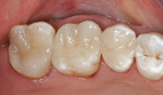 Figure 11  Upper left quadrant restored with all-porcelain CAD/CAM restorations.