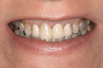 Figure 2  Preoperative view of the smile revealing discolored teeth, composite restorations, and crowns (Note: image was taken after extraction of tooth No. 8).