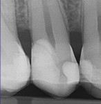 Fig 13. Radiograph taken immediately after direct pulp cap and crown build-up.