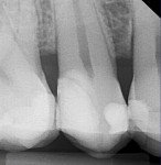 Fig 14. Radiograph taken 14 months later showing apparent formation of reparative dentin. The tooth was asymptomatic and pulp-tested vital.