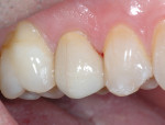 Fig 15. Finished restoration tooth No. 4 (lithium-disilicate crown) placed approximately 22 months after the direct pulp capping procedure.