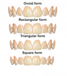Fig 15. Four forms of teeth templates for virtual smile designing.