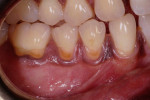 Fig 1. Teeth Nos. 28 through 30 were found to have gingival recession with NCCLs and gingival pigmentation in interdental papillae and a zone of keratinized gingiva.