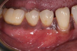 Fig 5. After 12 weeks of healing, nearly complete root coverage was achieved and the zone gingival pigmentation preserved.