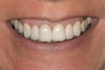 Figure 13  Postoperative view of the patient's natural smile.