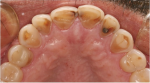 Fig 1 through Fig 3. Clinical examples of dental erosion in three different patients. Fig 1: retracted front view. Fig 2: occlusal view, upper arch. Fig 3: occlusal view, lower arch.