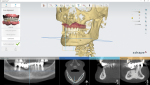Fig 3. The dentist uses the impression data in combination with the CBCT data for digital planning.