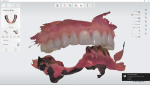 Fig 4. The dentist sends pre-operative digital impression scans as well as a standalone scan of the lower arch, showing the prepared teeth and abutments, to the laboratory.