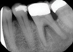 Eighteen months later, a periapical radiograph revealed progression of periodontal attachment loss. An apicomarginal bony defect was noted surrounding the distal root, furcal bone loss was evident, and a radiolucency was noted at the apex of the distal root. Clinical testing indicated the tooth was necrotic; however, the patient refused treatment.