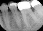 Upon initial examination, loss of periodontal supporting tissue was noted on the distal aspect of tooth No. 19. Treatment was not performed at this time.