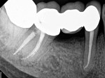 A 1-year, postoperative exam revealed a clinically normal tooth No. 29 with radiographic evidence of complete bony healing.