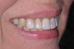 Preoperative smile (right view).