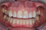 Preoperative smile (retracted view).