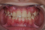 Posttreatment smile, retracted smile view, and retracted maxillary incisal view.