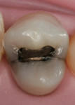 Figure 1  Tooth No. 12 showed signs of recurrent decay with mesial and distal enamel cracks.