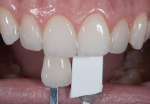 Fig 3. This is the same shade tab as shown in Figure 2 except here the tab was placed approximately 3 mm behind the tooth. Note the difference in perception of color.