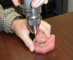 Figure 3  Using a torque gauge to measure abutment removal.
