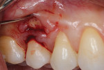 Fig 3 and Fig 4. Gingival margin elevation performed with a microsurgical periosteal elevator.