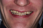 Fig 3. Patient's smile after multiple repairs of existing hybrid prostheses.