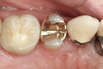 Figure 4  Preoperative views of tooth No. 4.