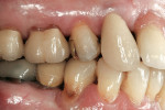 Figure 5  Preoperative views of tooth No. 4.