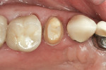 Figure 7  Preparation for a Lava zirconia crown on tooth No. 4.