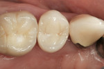 Figure 9: Zirconia crown on tooth No. 4.
