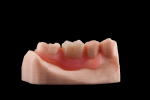 Fig 4. The 3D-printed Valplast partial denture appears with fully customized and milled PMMA teeth from the DGSHAPE DWX-51D.