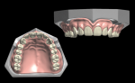 Fig 5. The teeth are arranged virtually, and wax is sculpted to finalize the digital denture design.