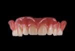 Fig 10. Teeth are polymerized into the milled denture base, and the denture is finalized by either polishing or staining and glazing the gingiva base for a more characterized appearance.
