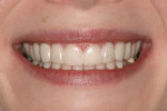 Figure 4  Immediately after placement of Snap-On Smile.