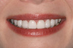 Figure 7  After 13 months of wearing the Snap-On Smile, the patient was very happy with her new LUMINEERS smile.