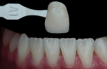 Fig 2. This intraoral shade photograph is used for communication with the laboratory technician.