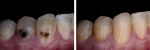 Fig 3. Intraoral photographs document the patient before and after treatment.
