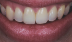 Fig 8. The dry skin and moist lips reflect and react to light differently than the wet oral mucosa.