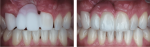 Fig 29. Retracted intraoral macro photography documents various treatment phases.