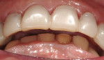 Figure 8  The anterior teeth demonstrate the restorative space created at the increase in vertical dimension.